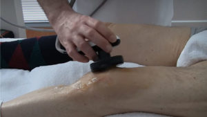 Knee treatment singapore