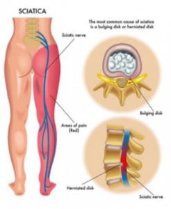 sciatica pain treatment singapore
