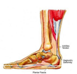 ankle pain treatment singapore